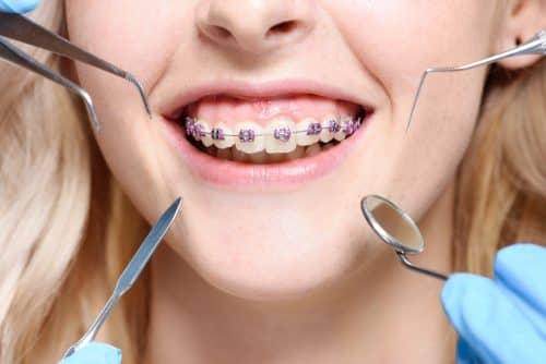 Современные методики лечения зубов