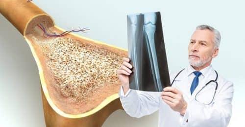 Вред соли для плотности кости