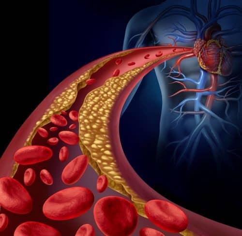 Низкий холестерин при нехватке жиров