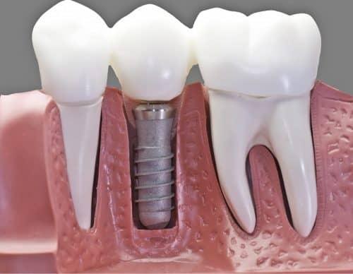 Лечение или удаление зубов?