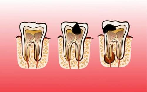 Здоровые зубы от чеснока