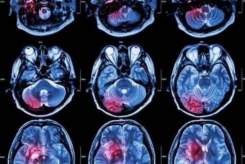 Слюноотделение при болезнях нервной системы